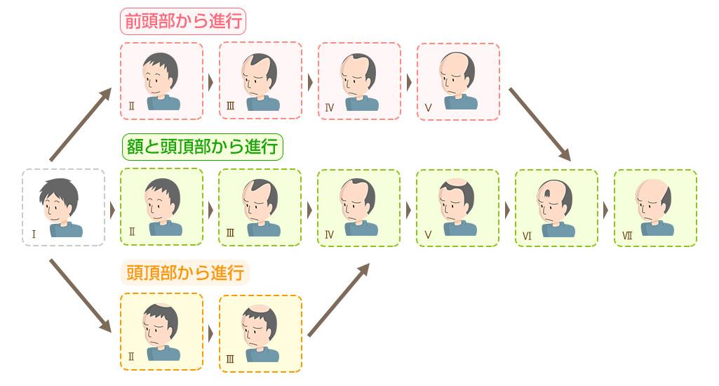 男性の薄毛のパターン